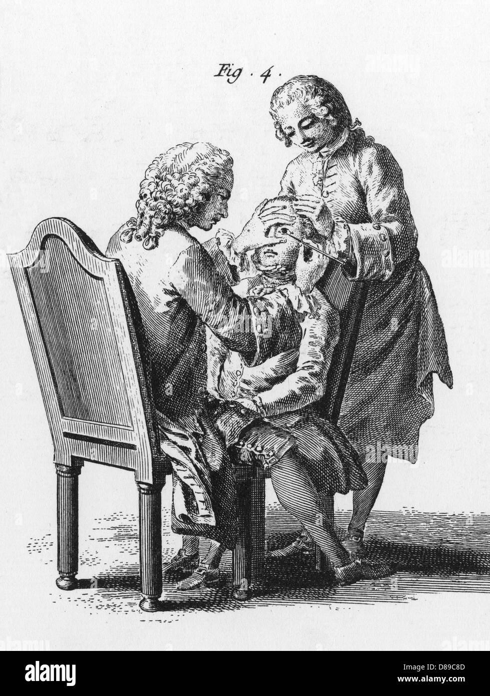 Eye Operation C.1760 - Stock Image