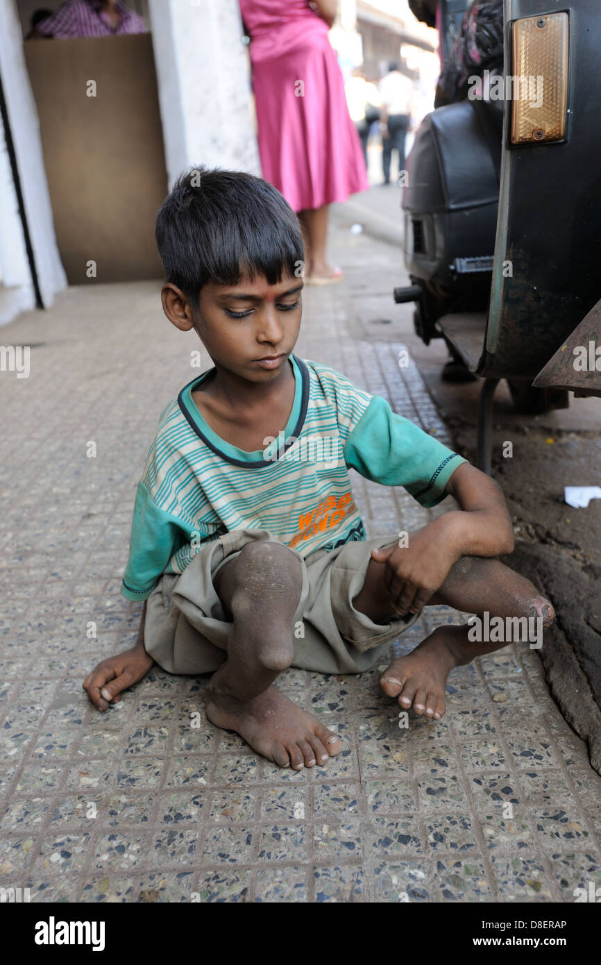 Young Indian beggar with seriously deformed limbs - Stock Image