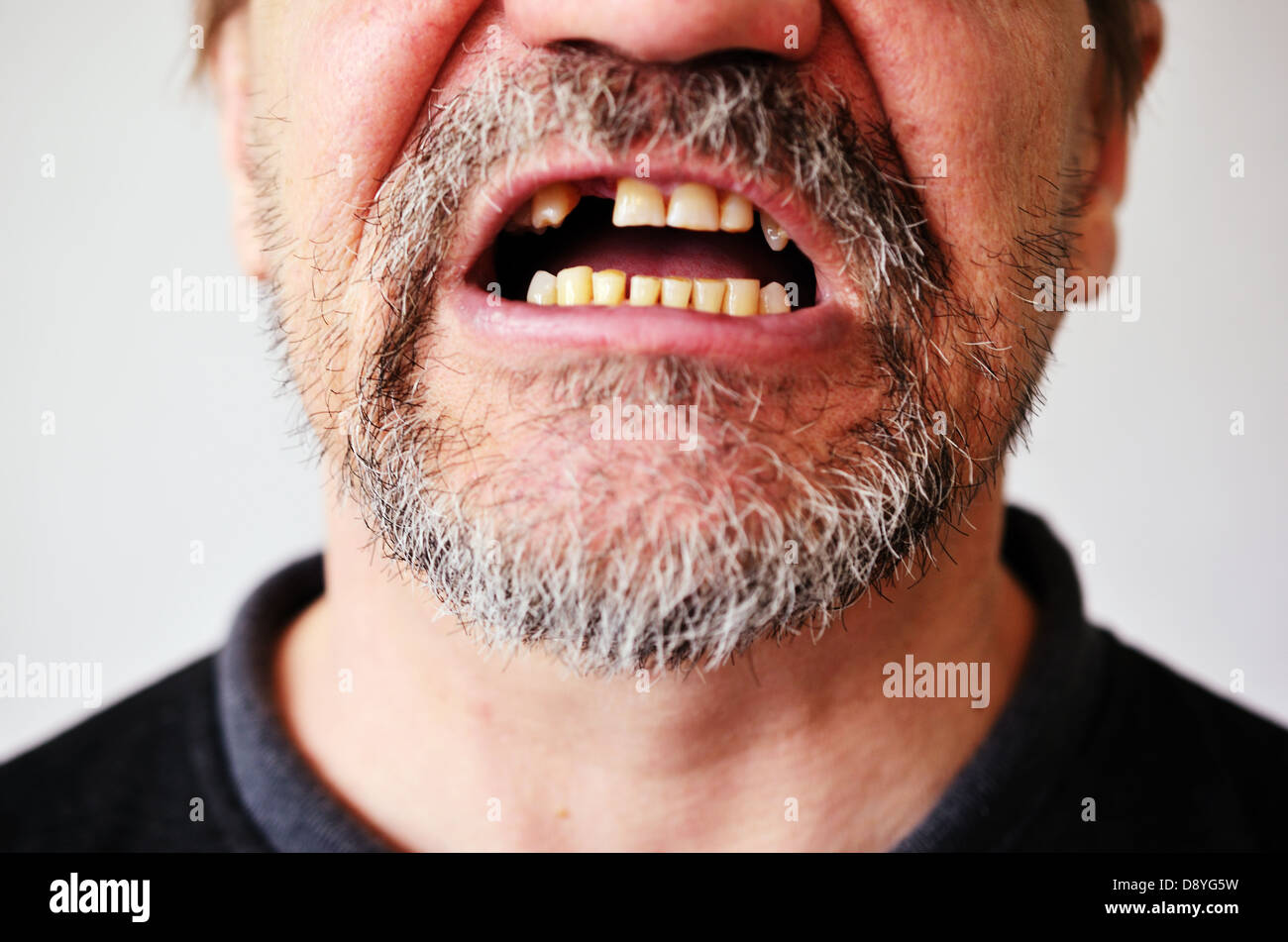 part of a man's face with an open toothless mouth - Stock Image