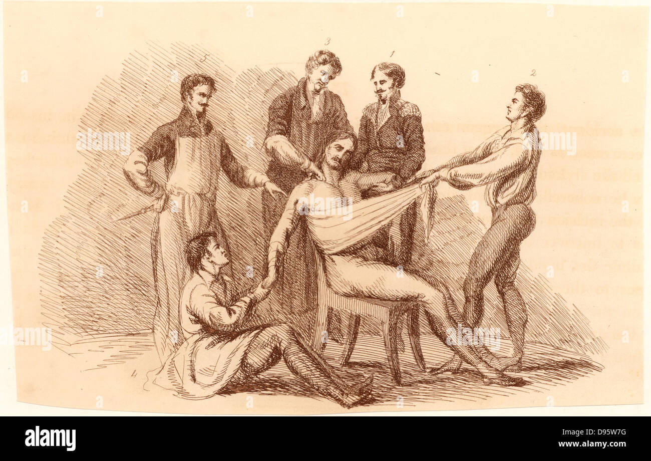 Surgeon and his assistants, before the introduction of anaesthetics, prepared to perform an amputation at the shoulder. - Stock Image