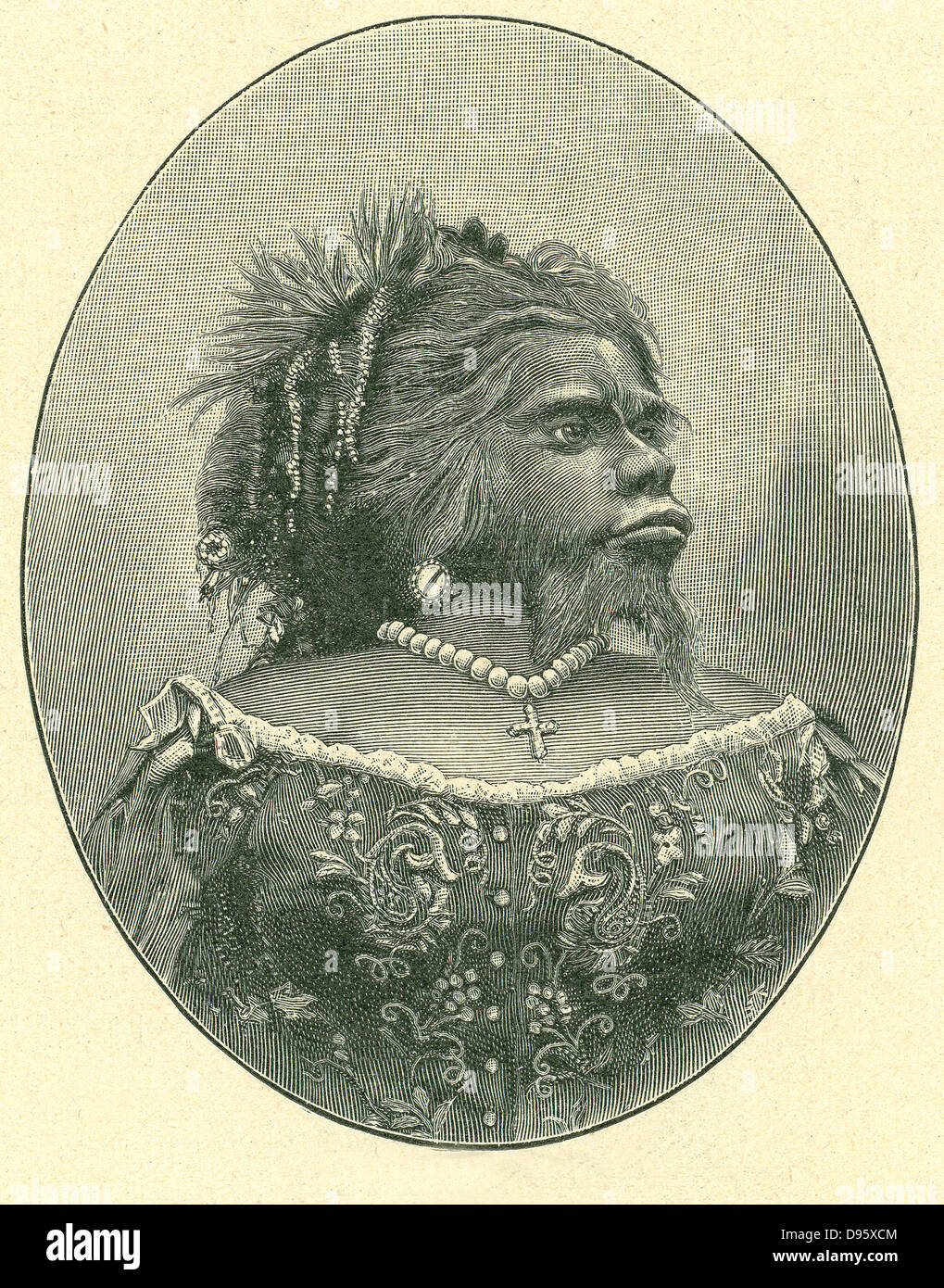 Julia Pastrana the Mexican bearded woman (1834-1860). She suffered from congenital hirsutism combined with gingival - Stock Image