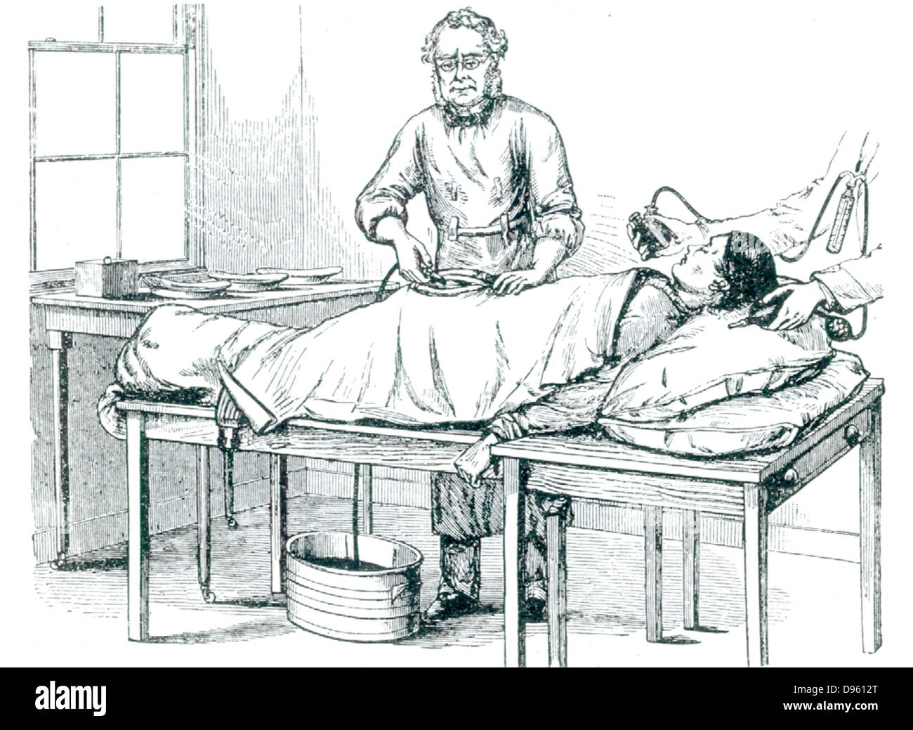 Thomas Spencer Wells (1818-1897) British gynaecolotist who perfected ovariotomy, performing an operation on a patient - Stock Image