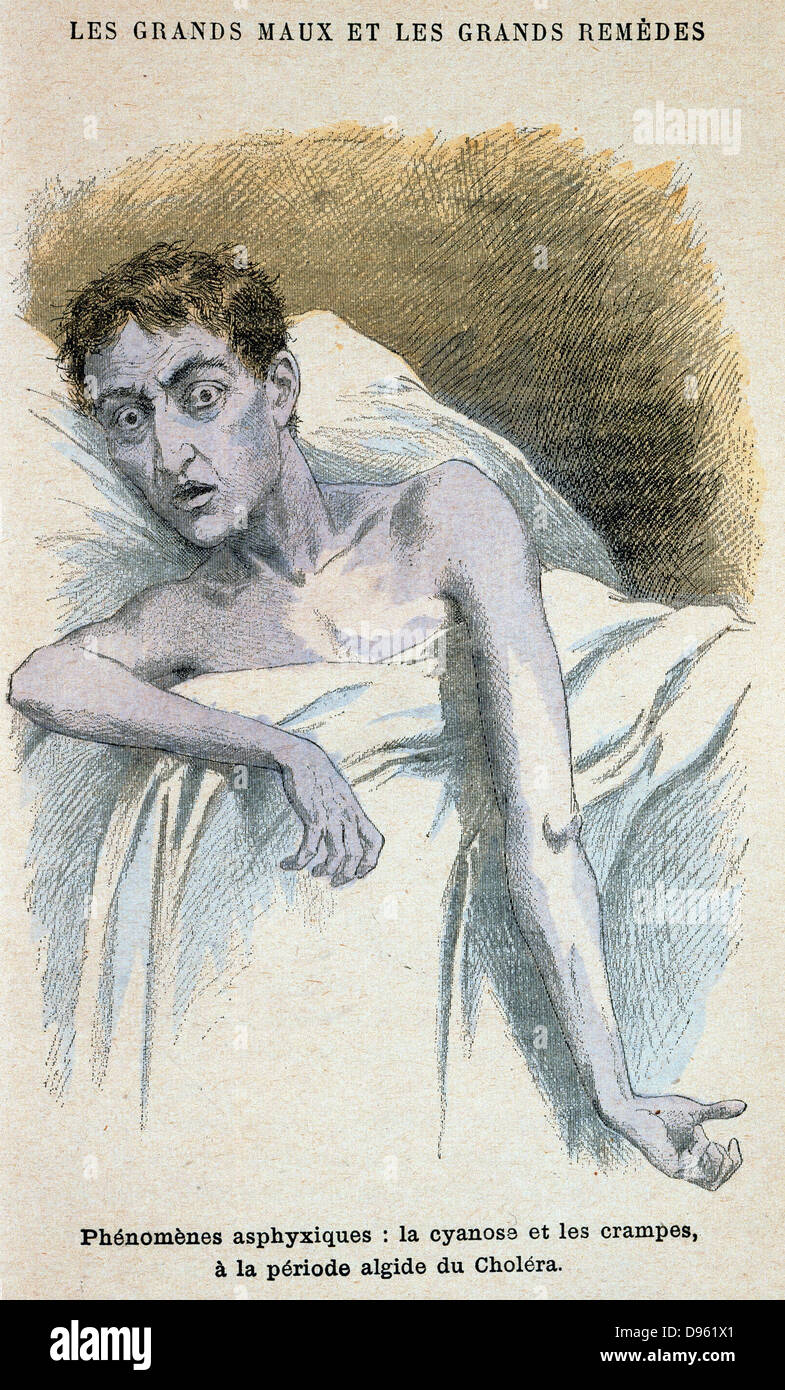 Cholera: Patient in typical cholera attitude. From French medical book published c1890. - Stock Image
