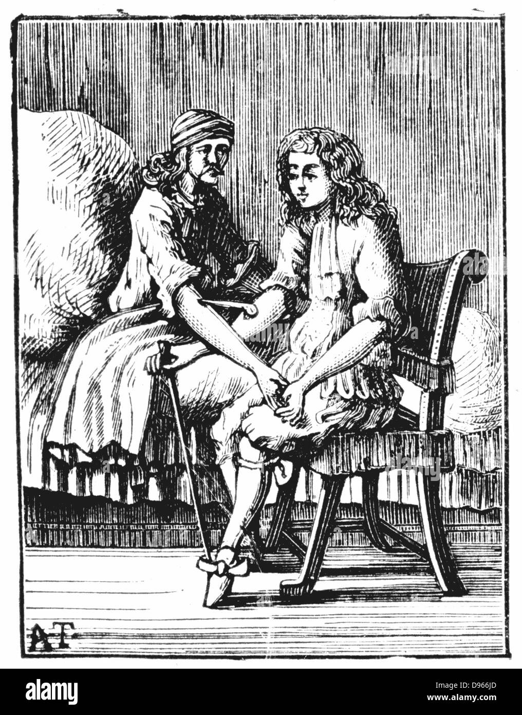 Direct person-to-person blood transfusion. After engraving from George Abraham Mercklino 'Tractatio med. Curiosa - Stock Image