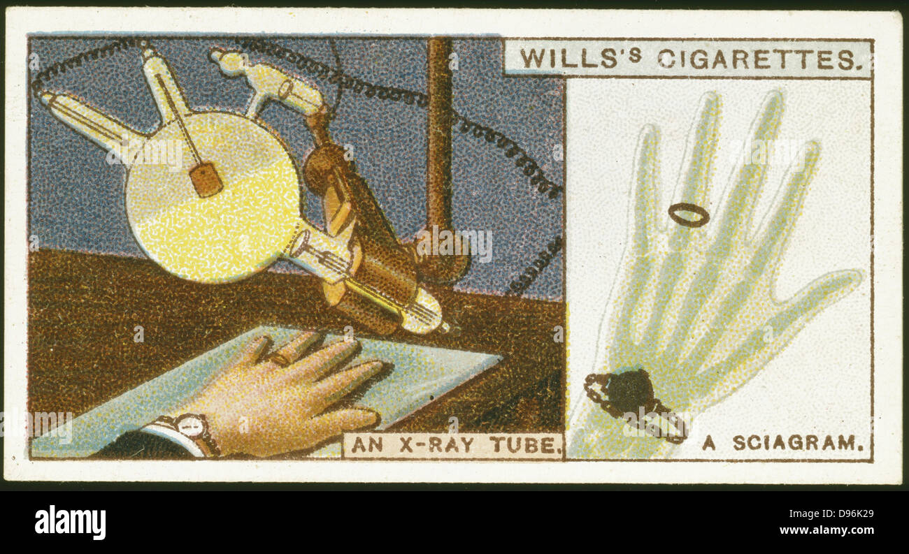 X-raying the hand. Card published 1924. Chromolithograph. - Stock Image
