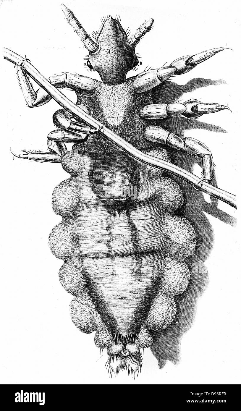 Human Louse, a wingless parasitic insect. Engraving from Robert Hooke 'Micrographia' London 1665. Now known - Stock Image
