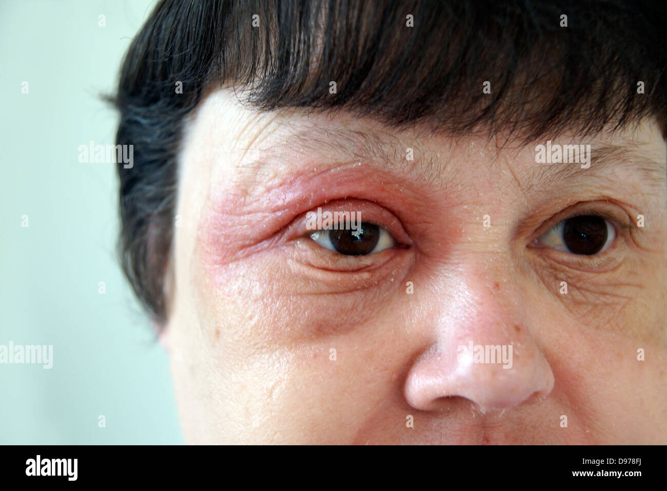 Rather valuable woman with facial rash with