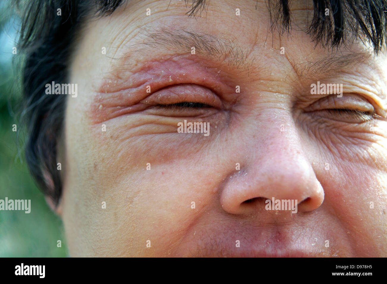 Woman suffering with eczema & a rash covering most of the face with the soreness surrounding & affecting - Stock Image