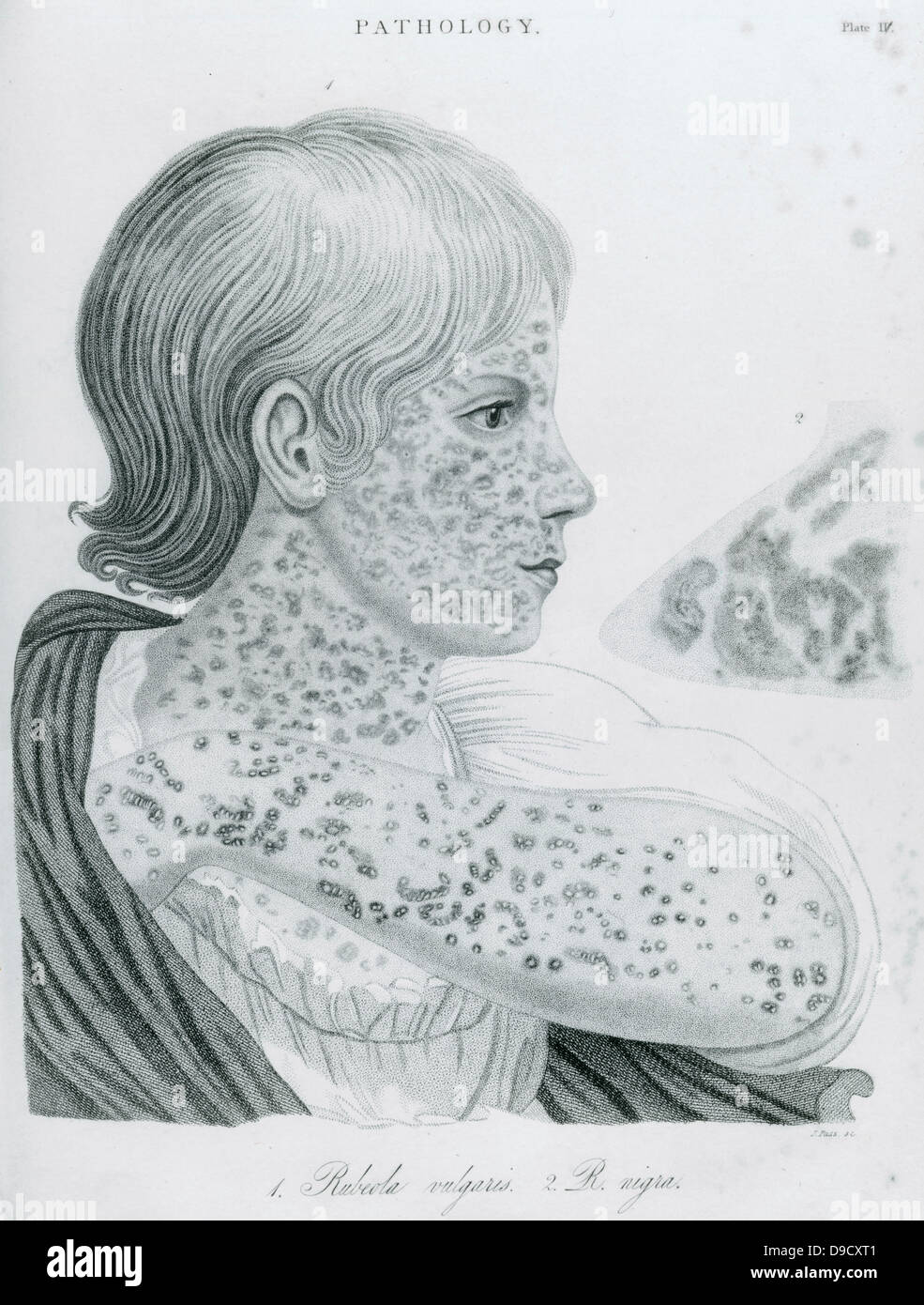 Child with Measles - Rubeola, morbilli. An attack of measles renders the patient vulnerale to secondary infections, Stock Photo