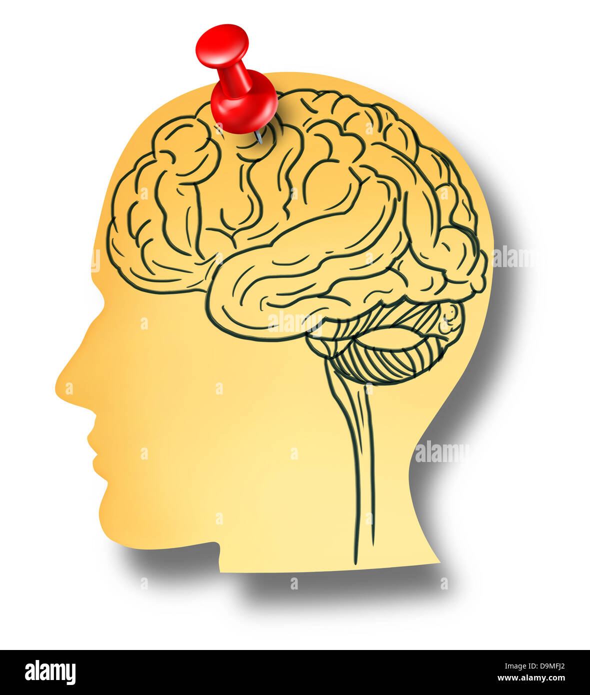 Brain reminder memory loss mental health medical concept of Dementia and Alzheimer's disease with the medical - Stock Image