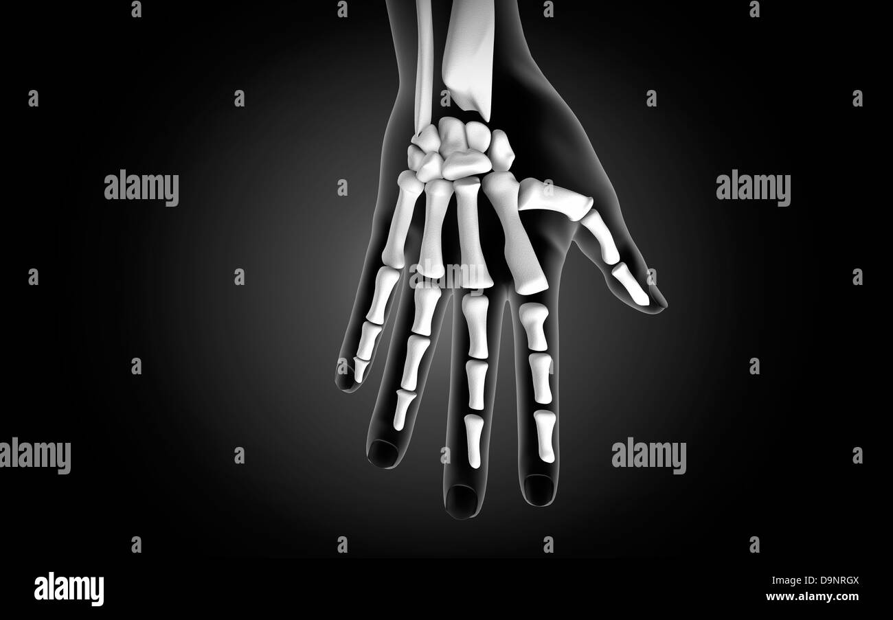 X-ray view of human hand. - Stock Image
