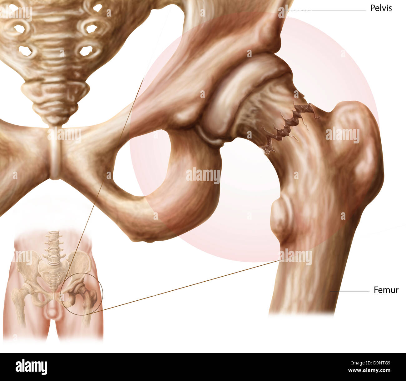 Anatomy of hip fracture. - Stock Image