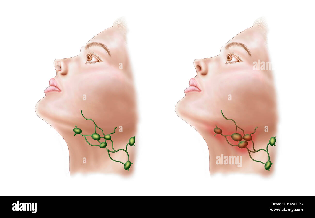 Anatomy of swollen lymph nodes Stock Photo: 57643463 - Alamy