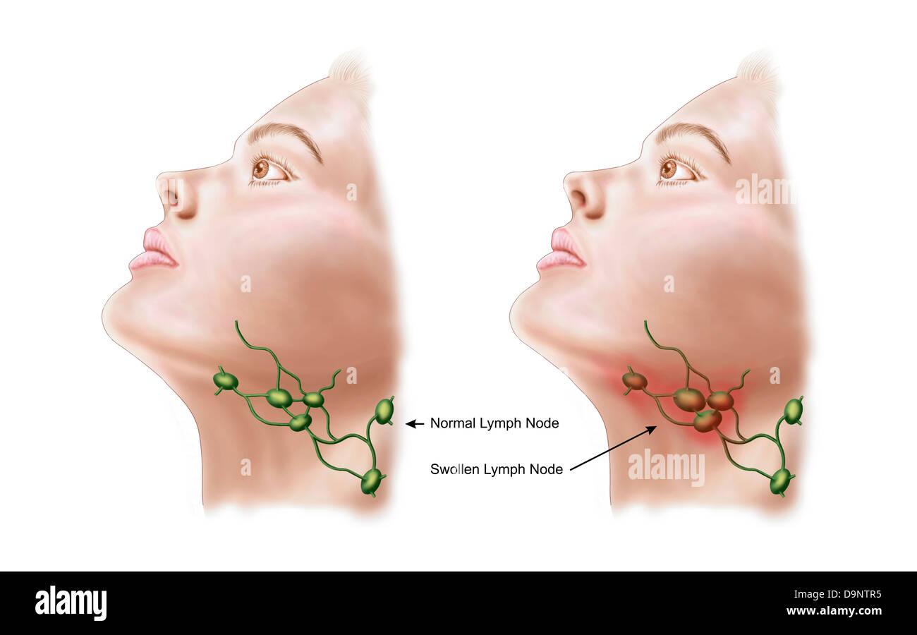 Anatomy of swollen lymph nodes stock photo 57643465 alamy anatomy of swollen lymph nodes ccuart Gallery