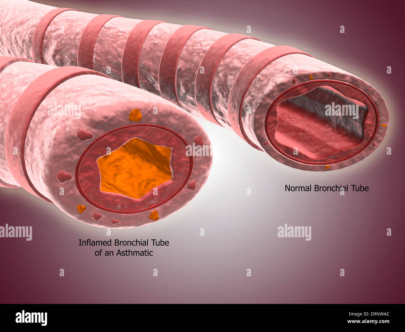 Trachea cross-section showing comparison of normal and asthmatic bronchiole. - Stock Image