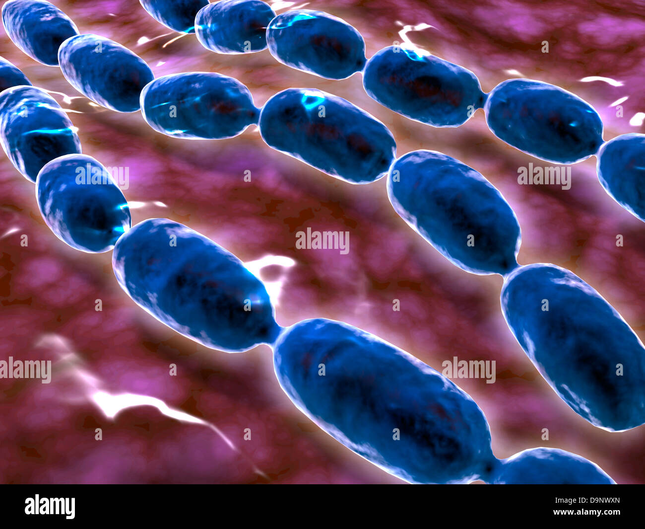 Microscopic view of bacterial pneumonia. - Stock Image