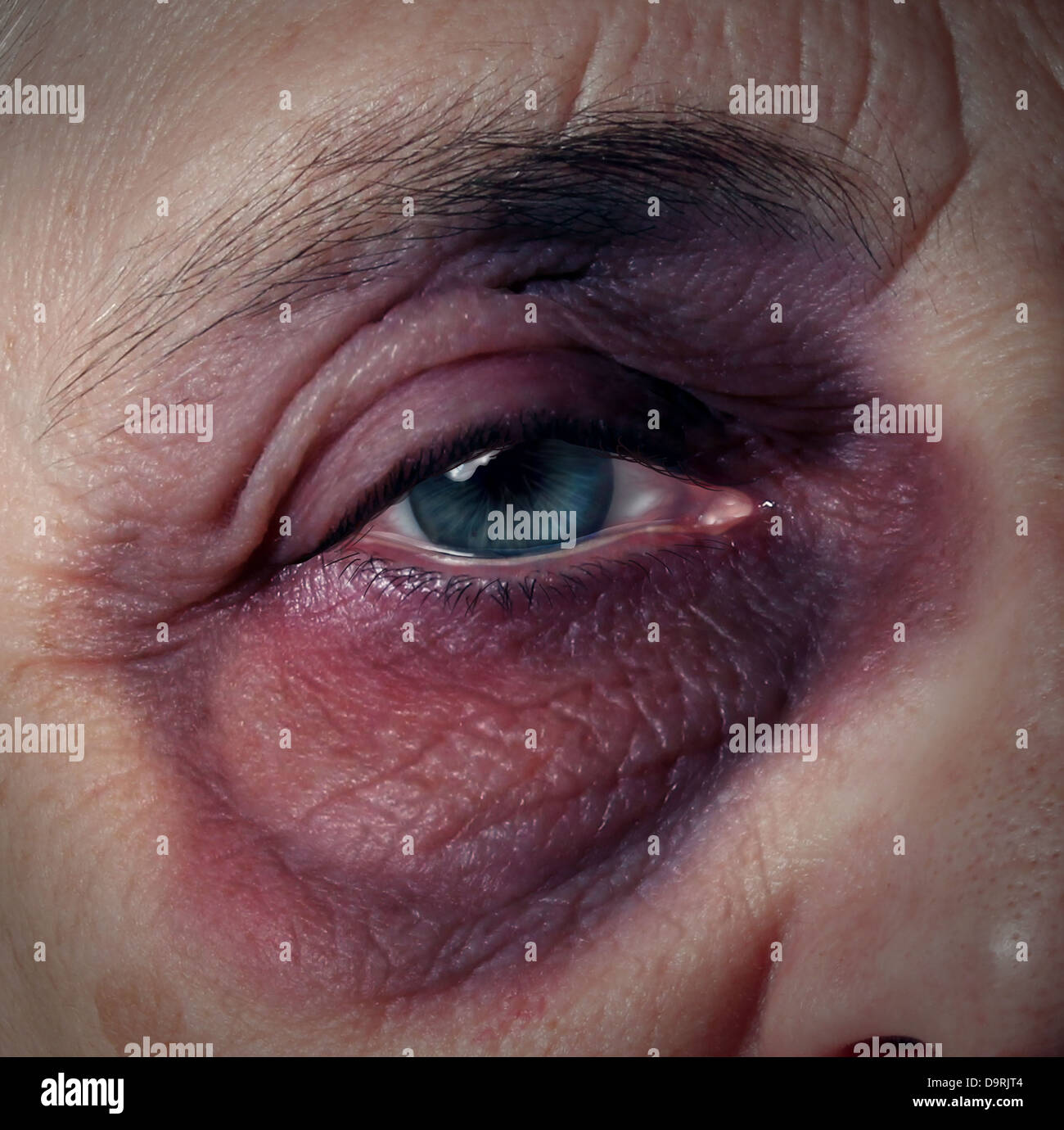 Senior abuse or elder mistreatment as an old person with a black eye bruised and injured from domestic violence - Stock Image