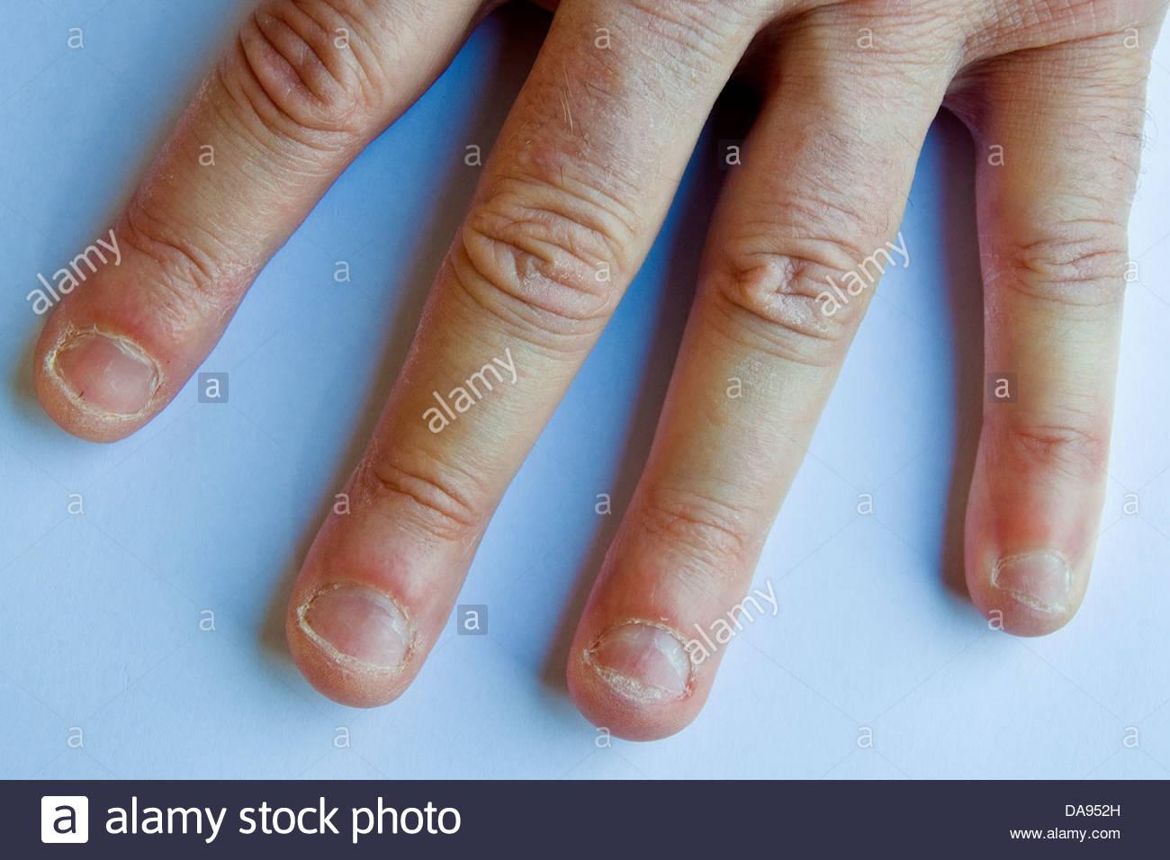 Bitten Nails Stock Photos & Bitten Nails Stock Images - Alamy