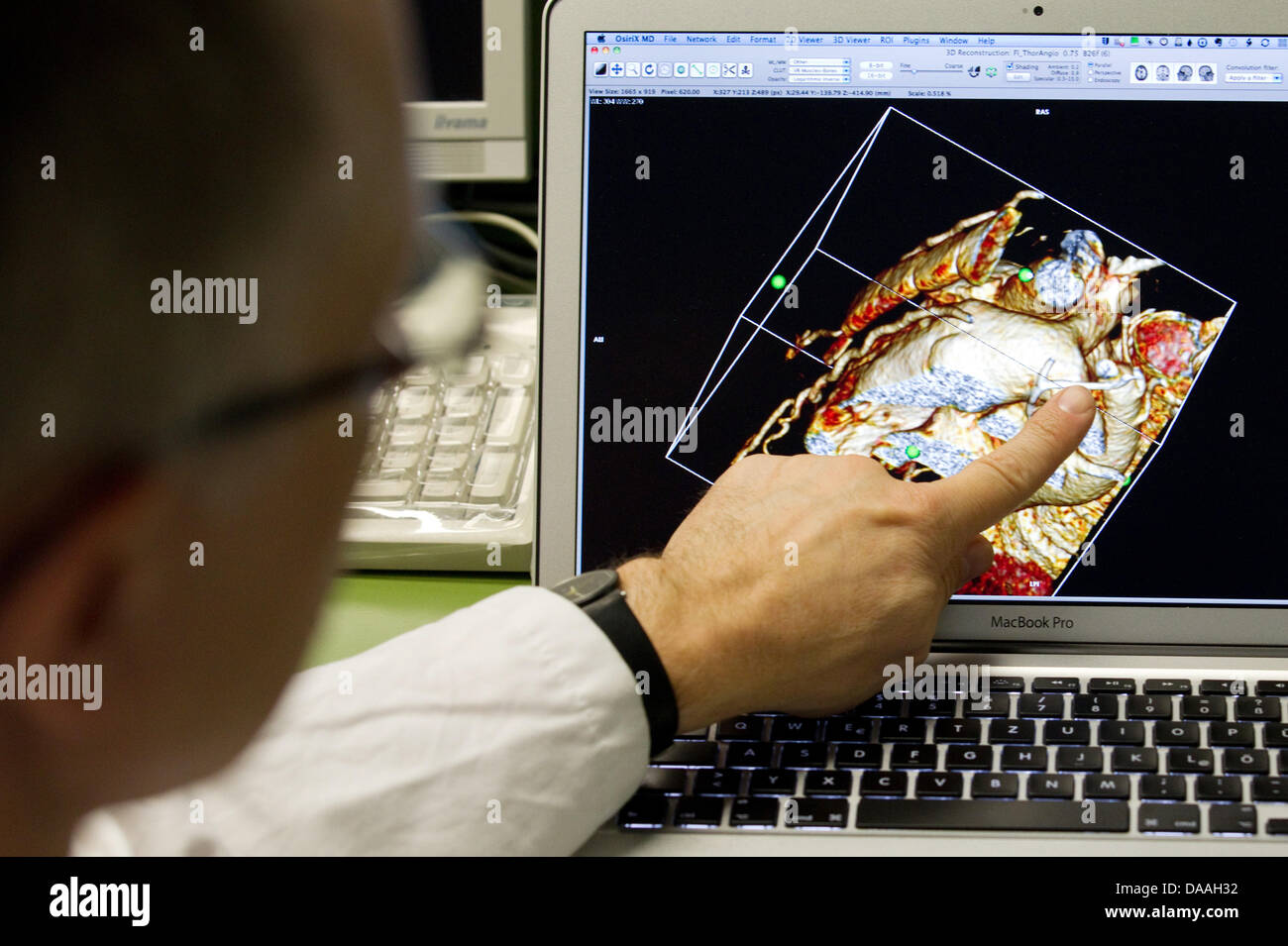 Dr. Hans Gerd Kehl, the commissionary head of the children's cardiology, points at a screen with an animated - Stock Image
