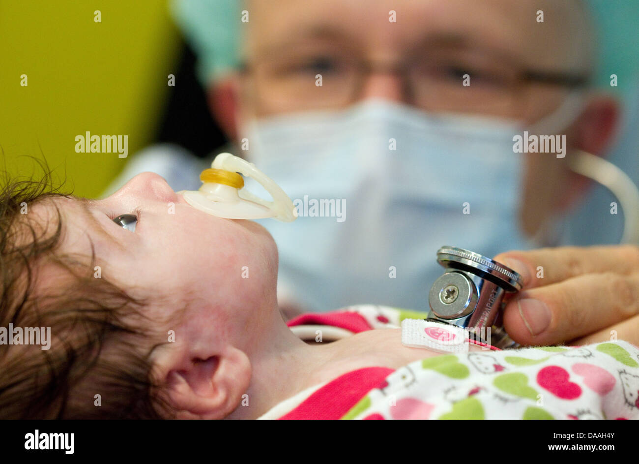 Dr. Hans Gerd Kehl, the commissionary head of the children's cardiology, checks upon the operated 6-weeks-old - Stock Image