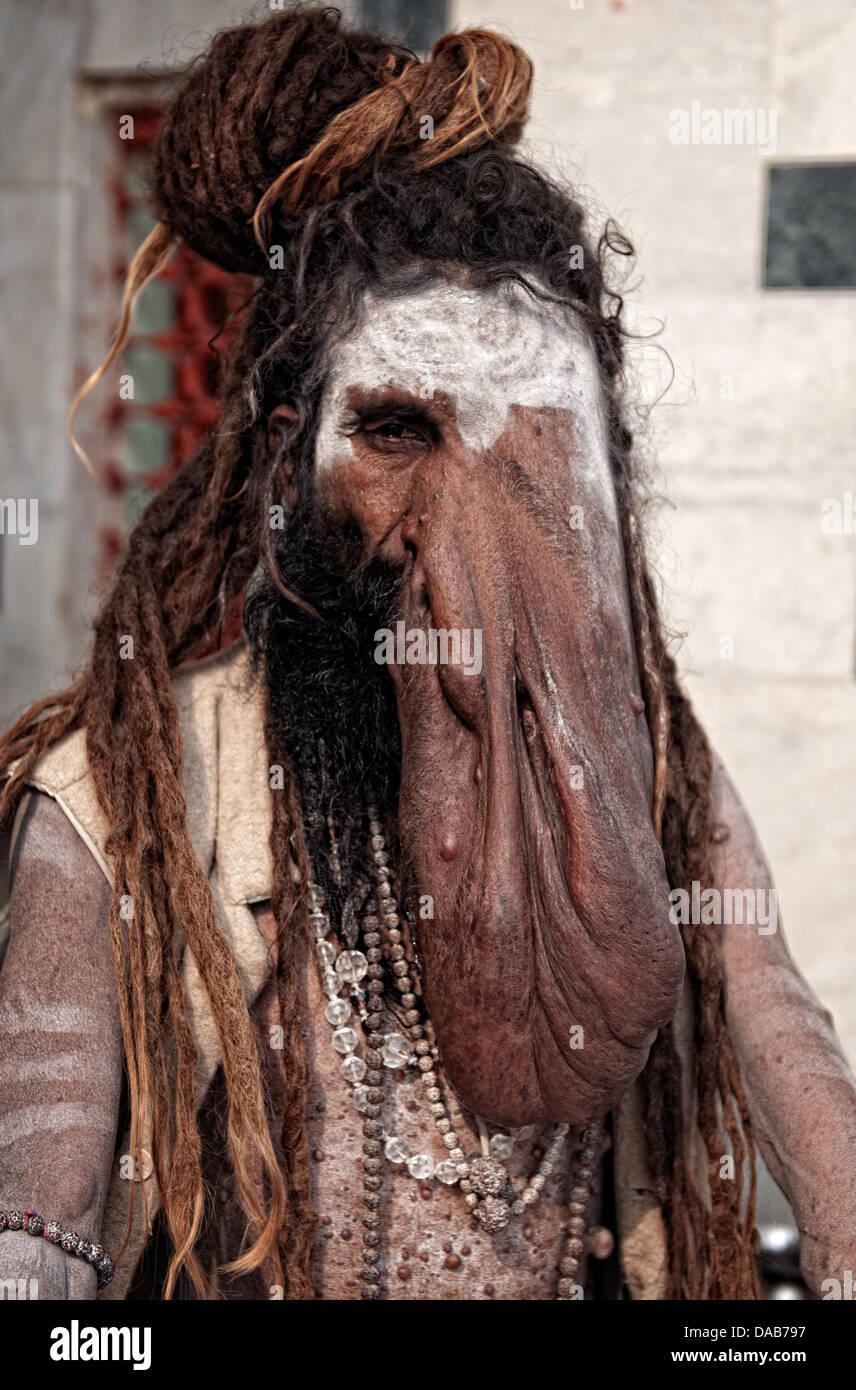Portrait of sadhu suffering elephantiasis. Varanasi, Benares, Uttar Pradesh, India - Stock Image