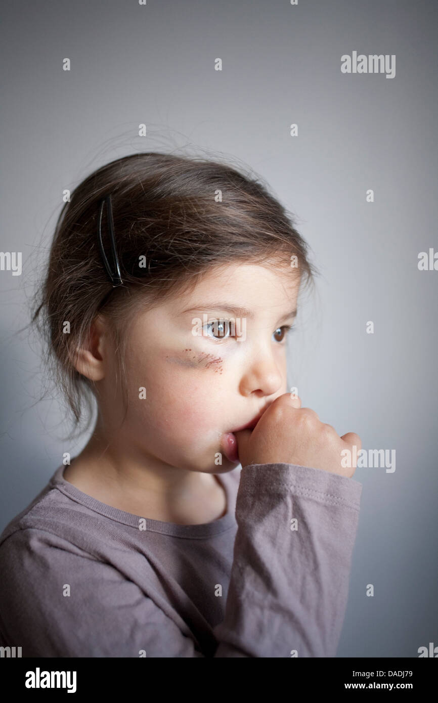 Girl with black eye sucking thumb - Stock Image