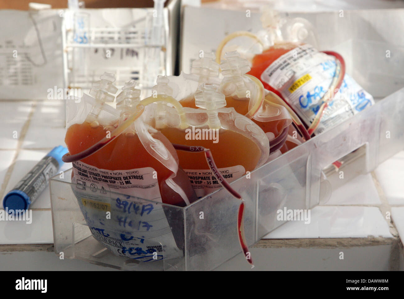 Blood samples are tested on HIV at the National blood-transfusion centre in Kinshasa, DR Congo, 05 May 2007. The Stock Photo