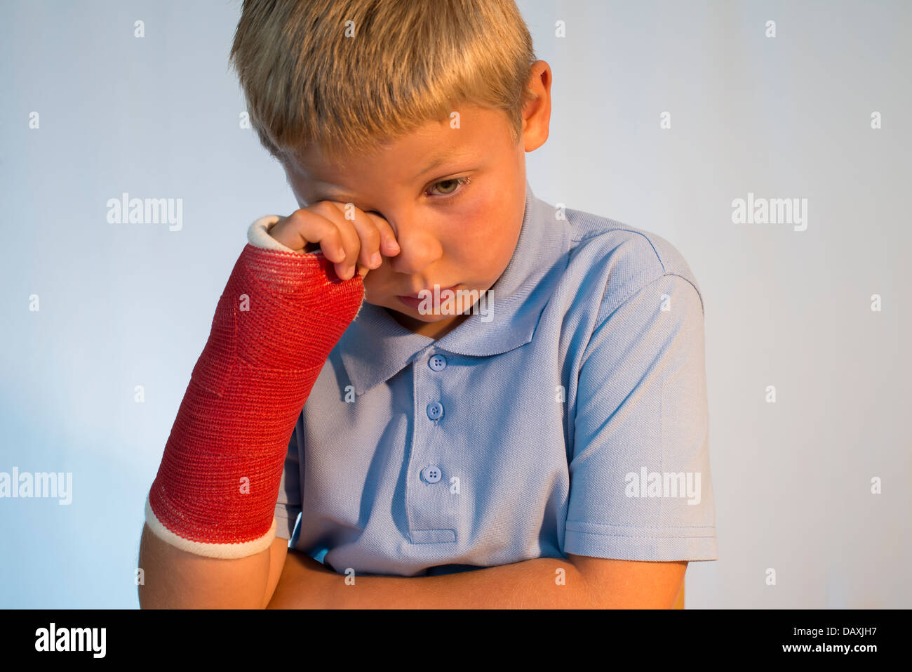Sad young boy with arm in plaster cast. - Stock Image