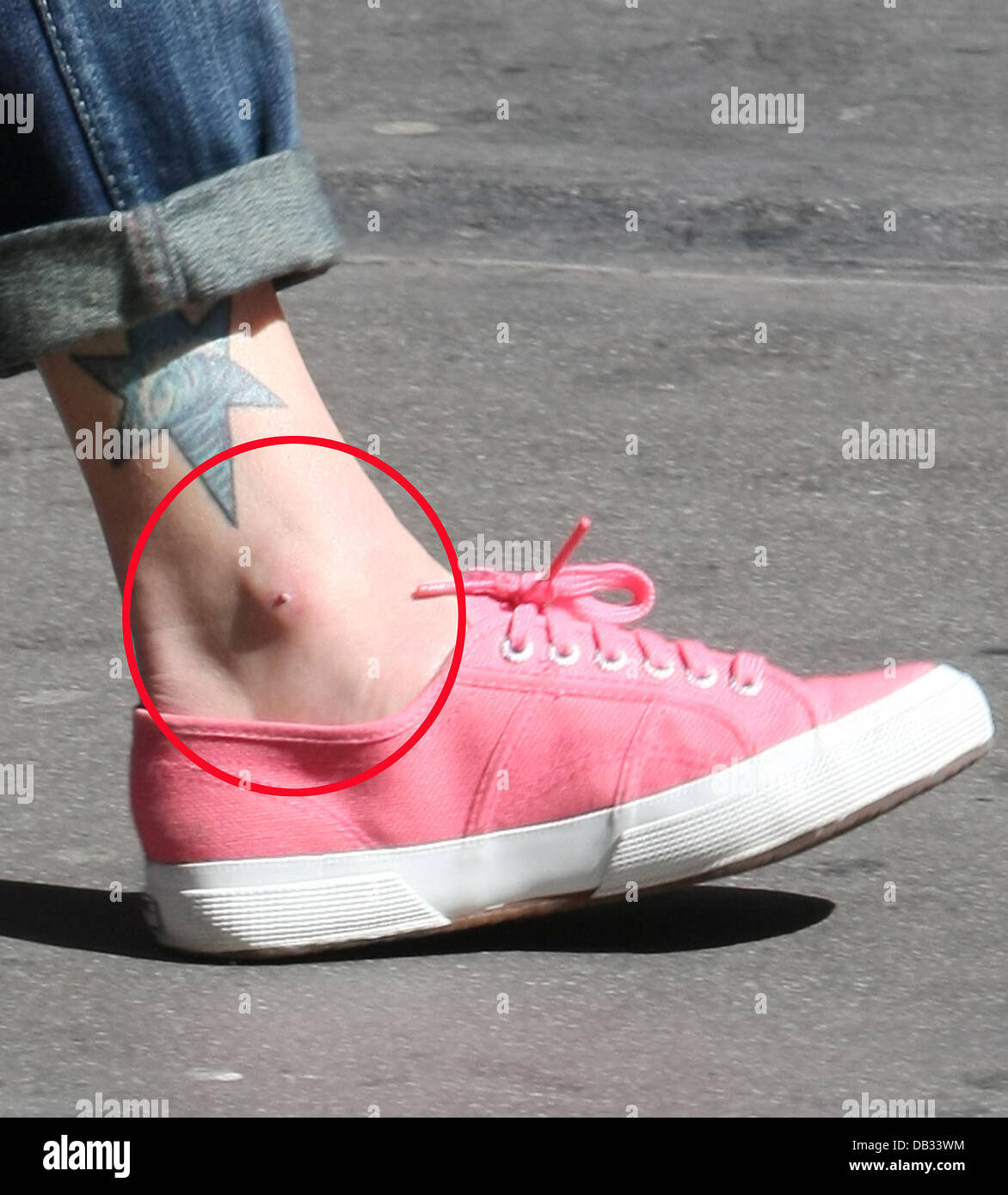 001eda7751bb7f Fearne Cotton has a very sore spot on her left ankle as she leaves the BBC