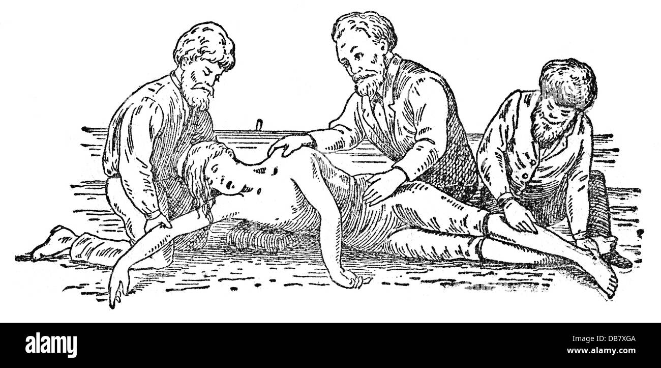 medicine, treatment, attempt at resuscitation according to Marshall Hall, second position, wood engraving, from: - Stock Image