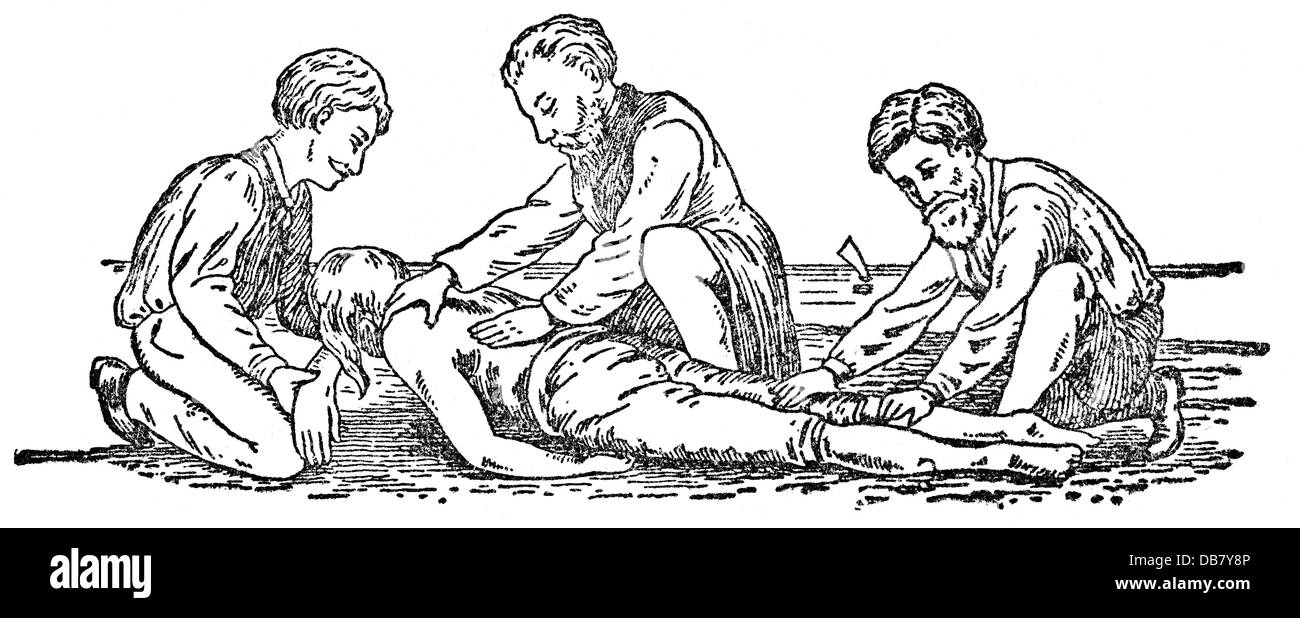 medicine, treatment, attempt at resuscitation according to Marshall Hall, first position, wood engraving, from: - Stock Image