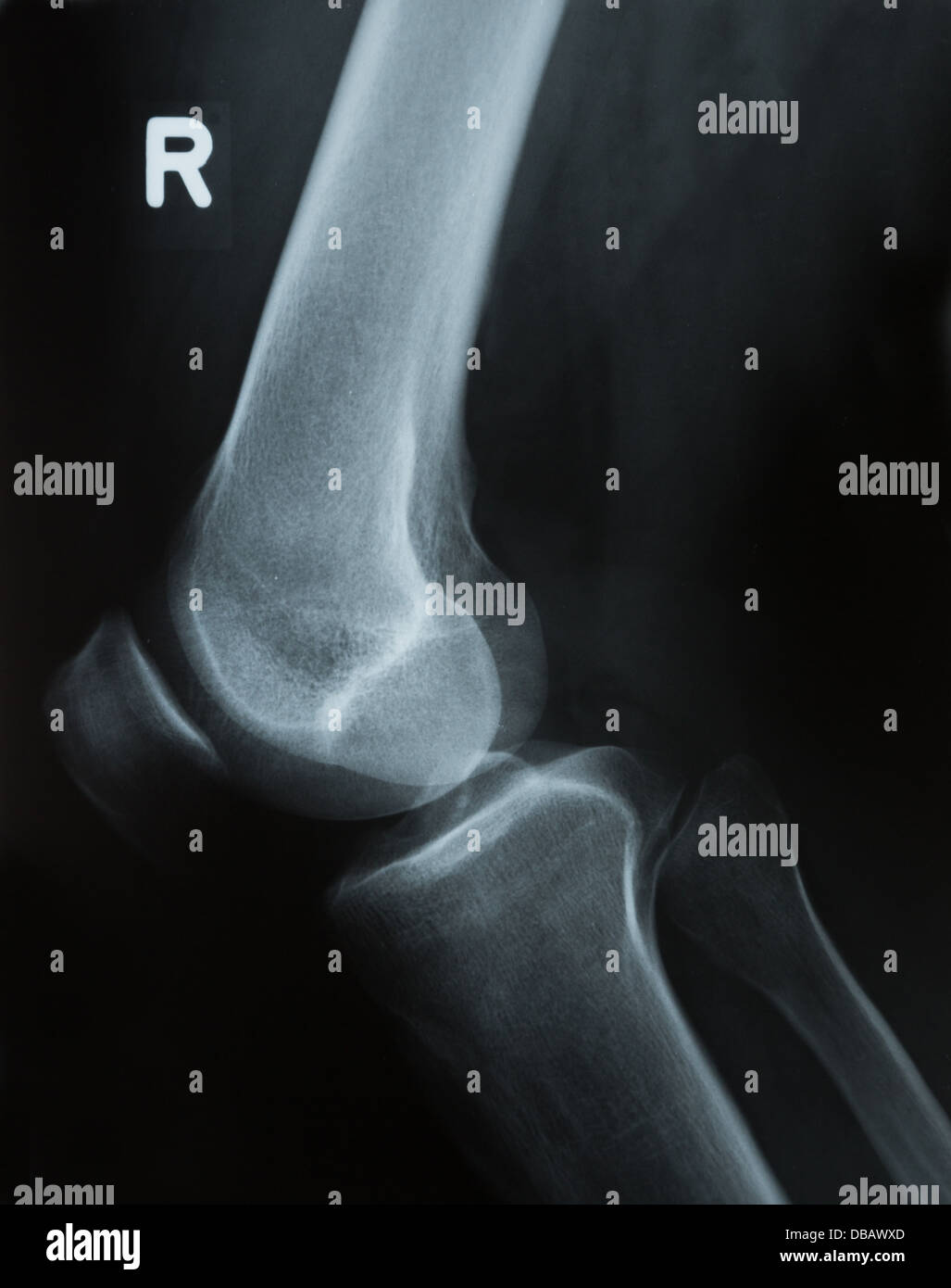X-ray photograph or Roentgen image of a human knee with tibia, femur, fibula and patella Stock Photo