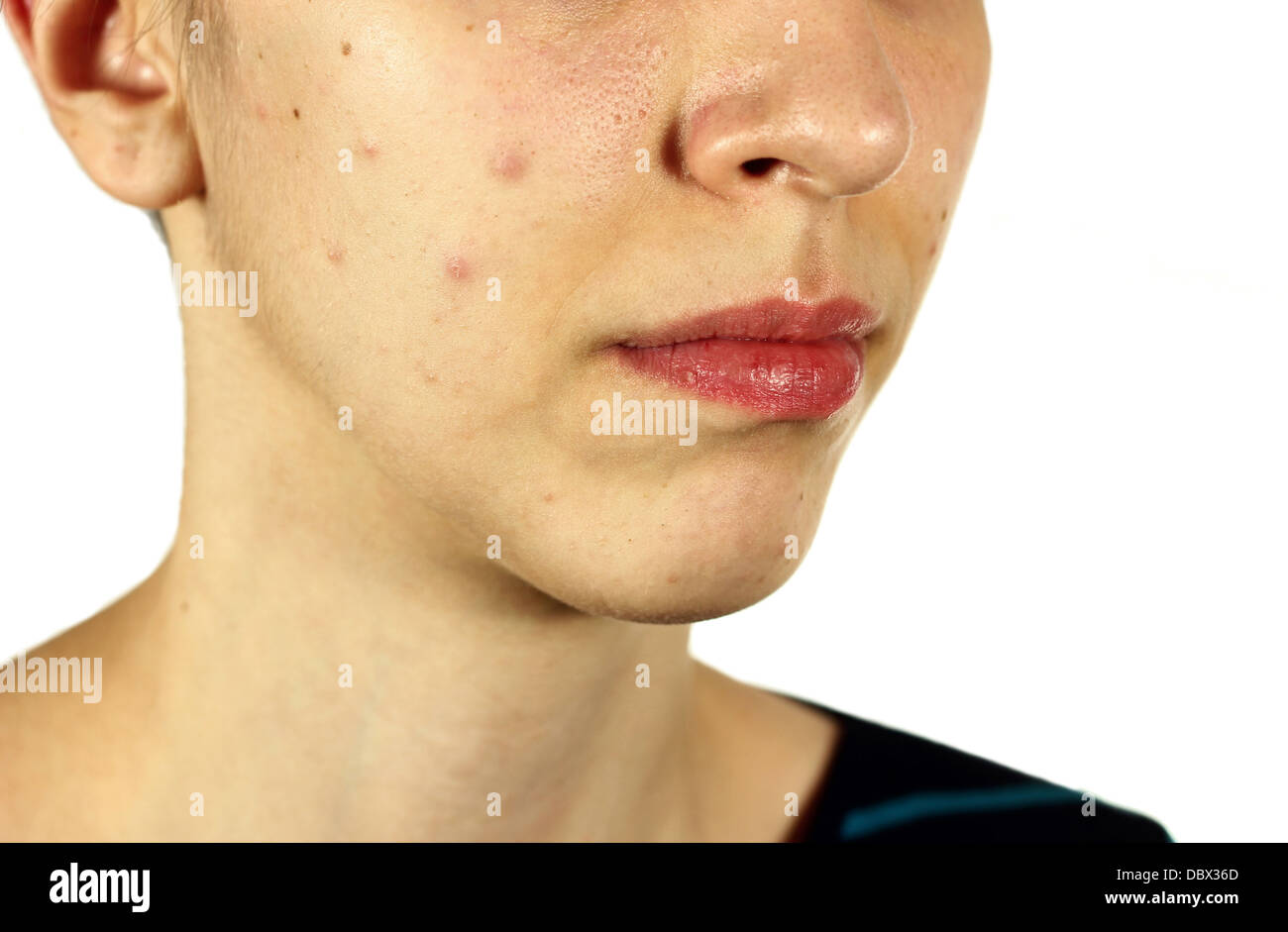 Girl With Bad Skin Acne And Black Heads On White Background Stock