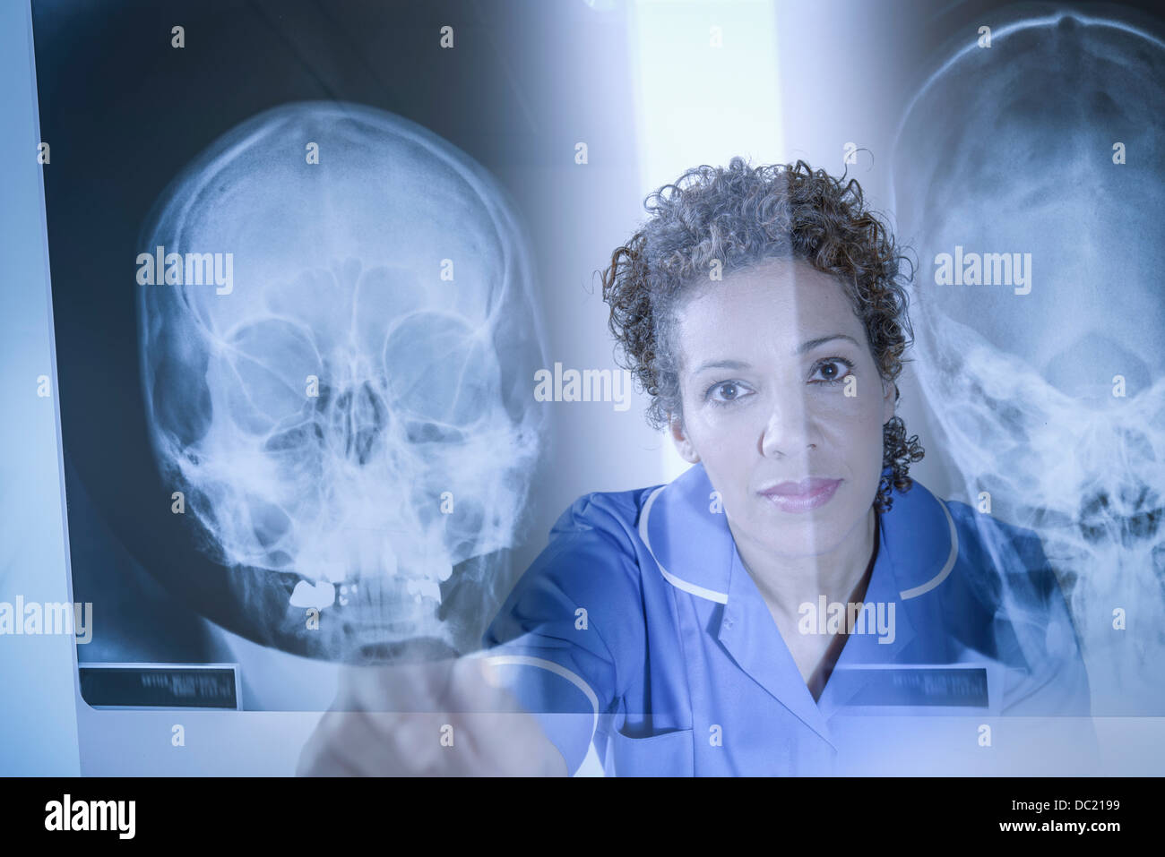 Nurse pointing at xray results displayed on screen - Stock Image