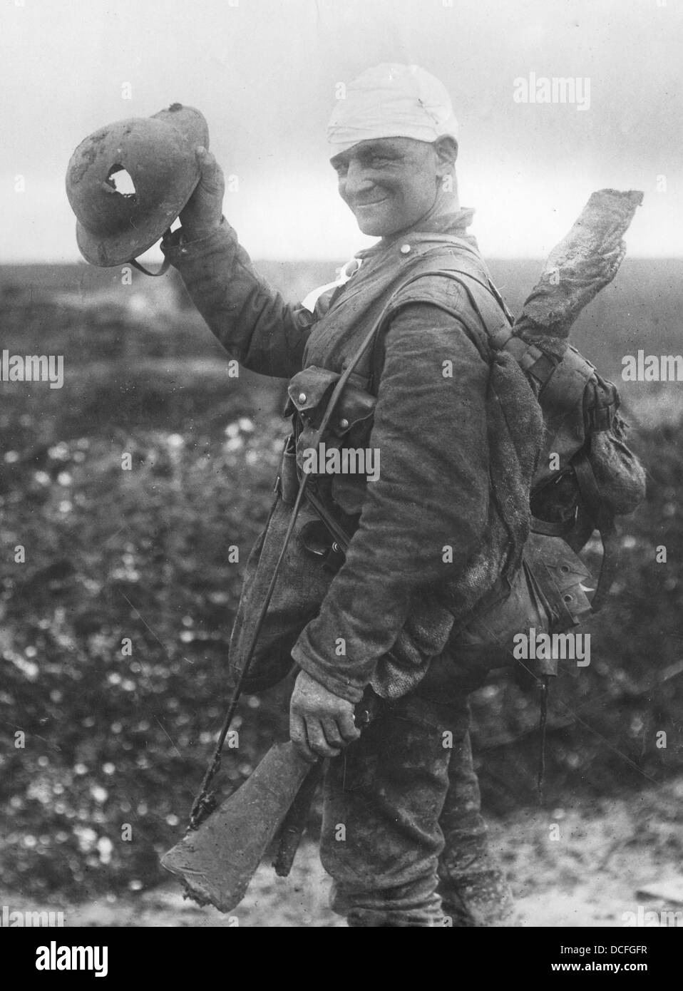 Great War. WW1 A British soldier with bandaged head on the way to the rear and hospital shows his shrapnel damaged - Stock Image