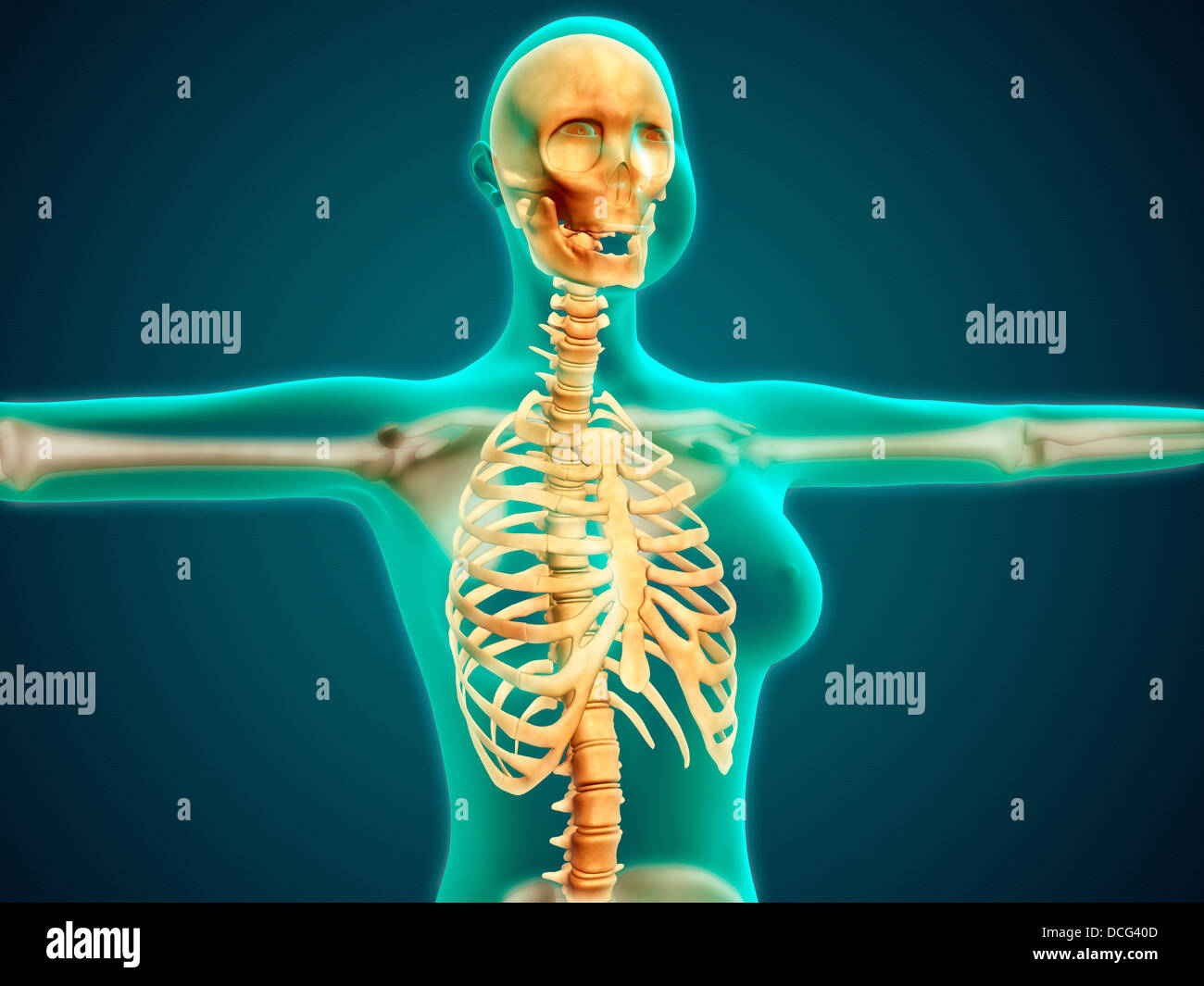 X-ray view of female upper body showing rib cage, spine and skull ...