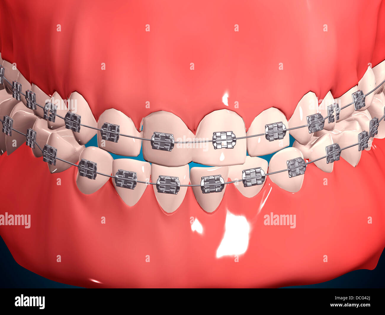 Medical Illustration Of Human Mouth Showing Teeth Gums And Metal