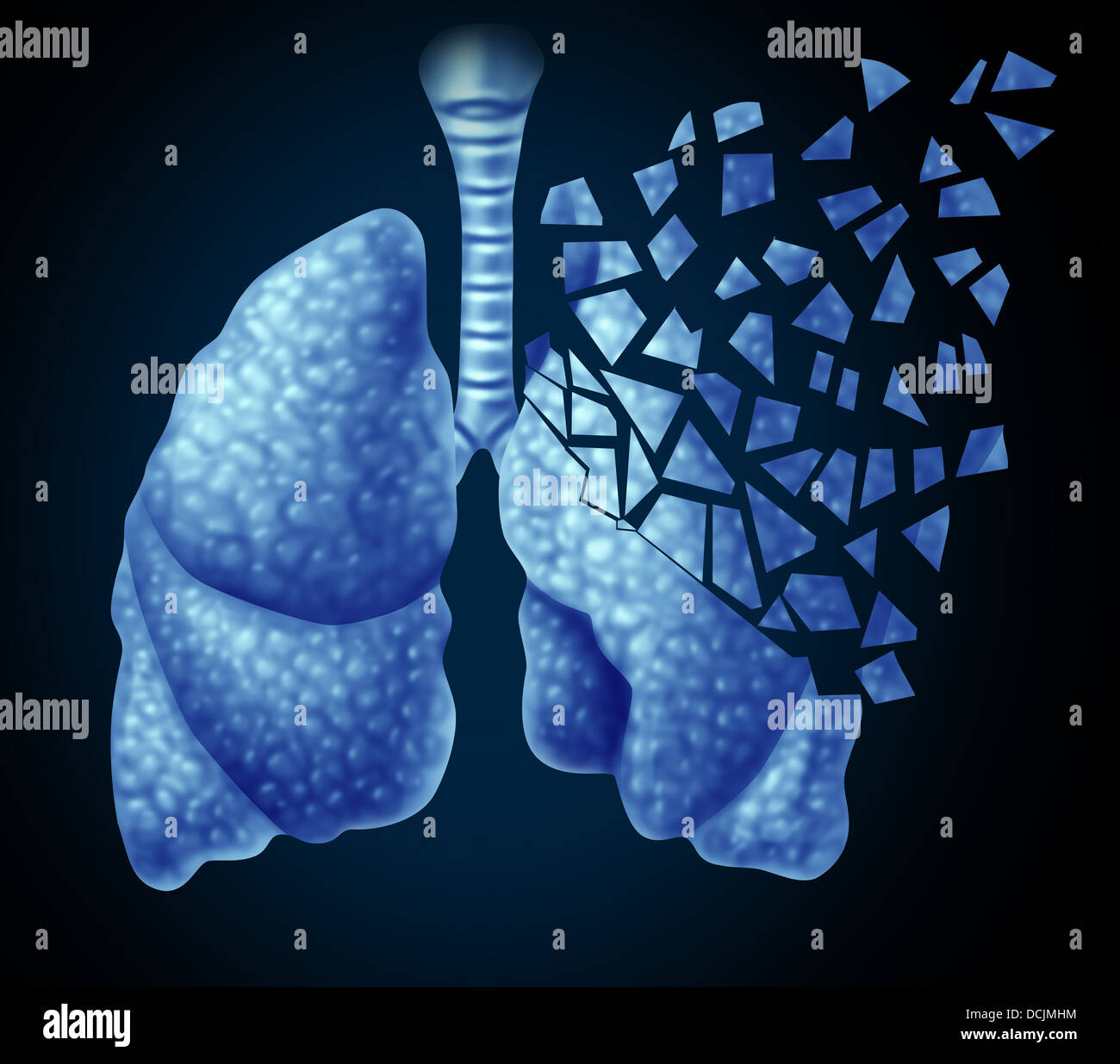 Lung illness and losing human lungs health care concept as a decline in respiratory function caused by cancer or - Stock Image
