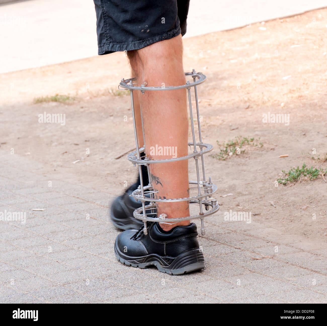 Broken leg with metal bars on it - Stock Image