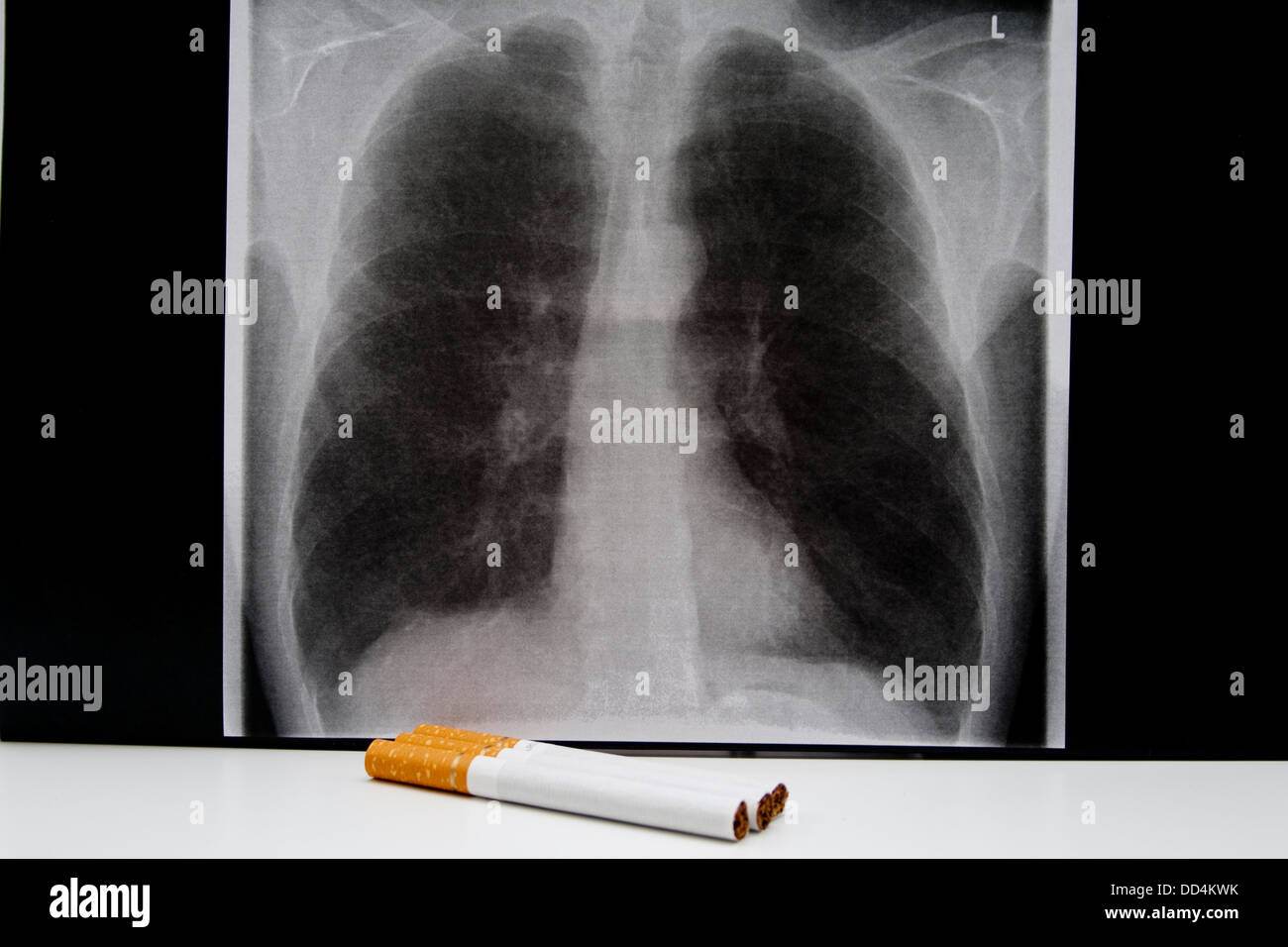 Lung picture with cigarettes - Stock Image