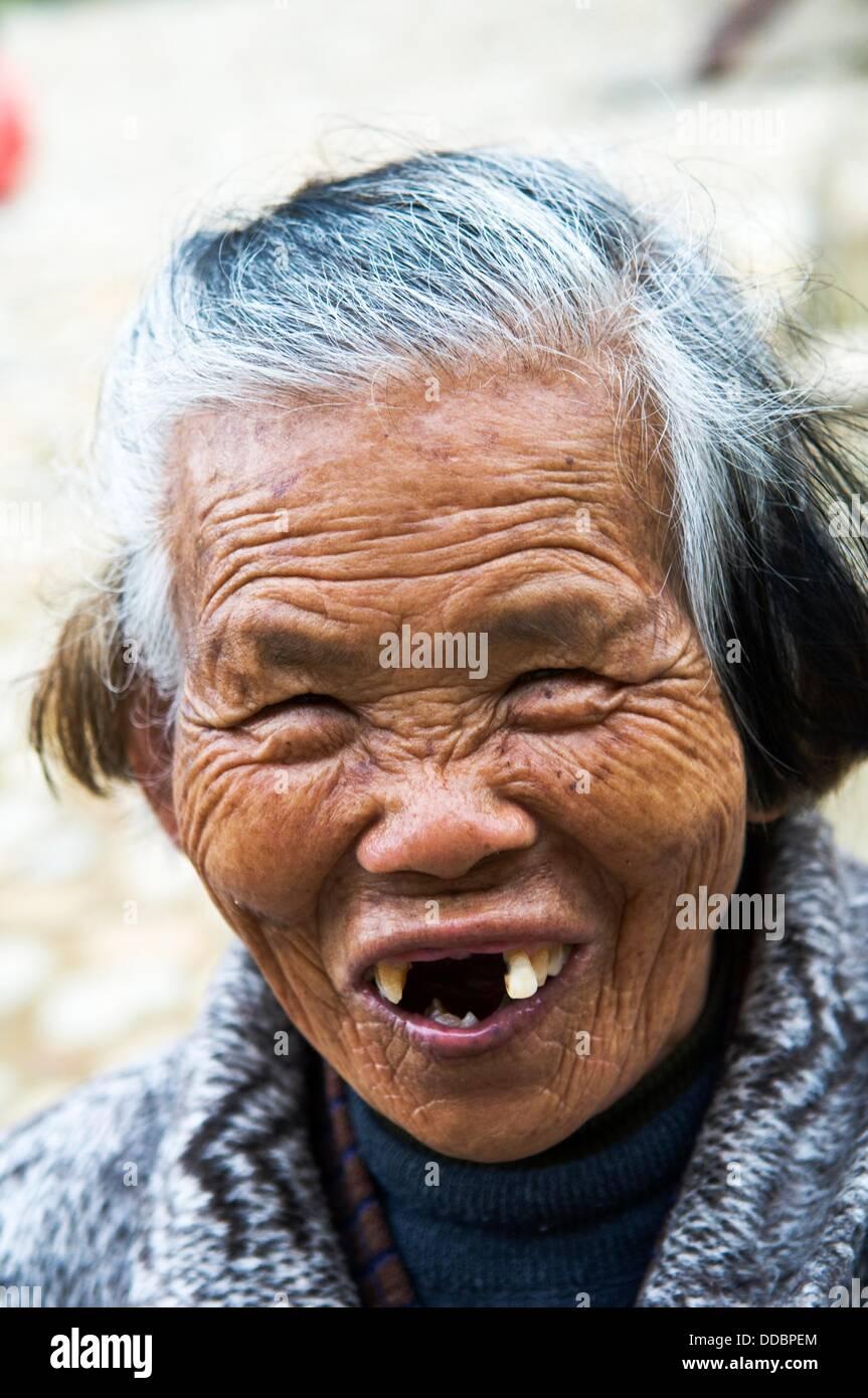 woman with bad teeth