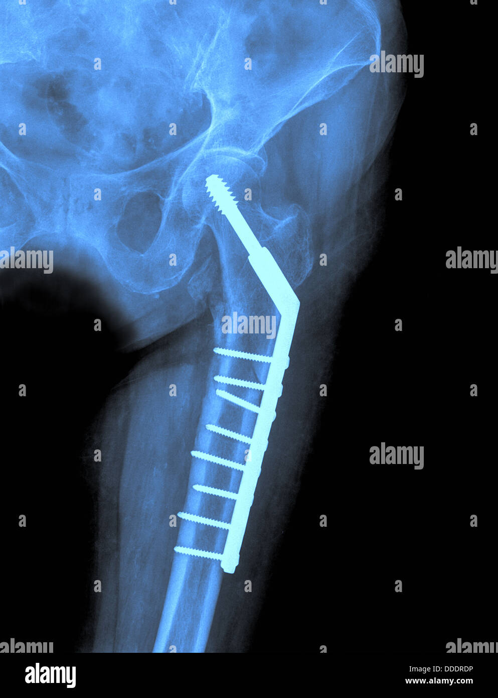 Hip xray image medical background - Stock Image