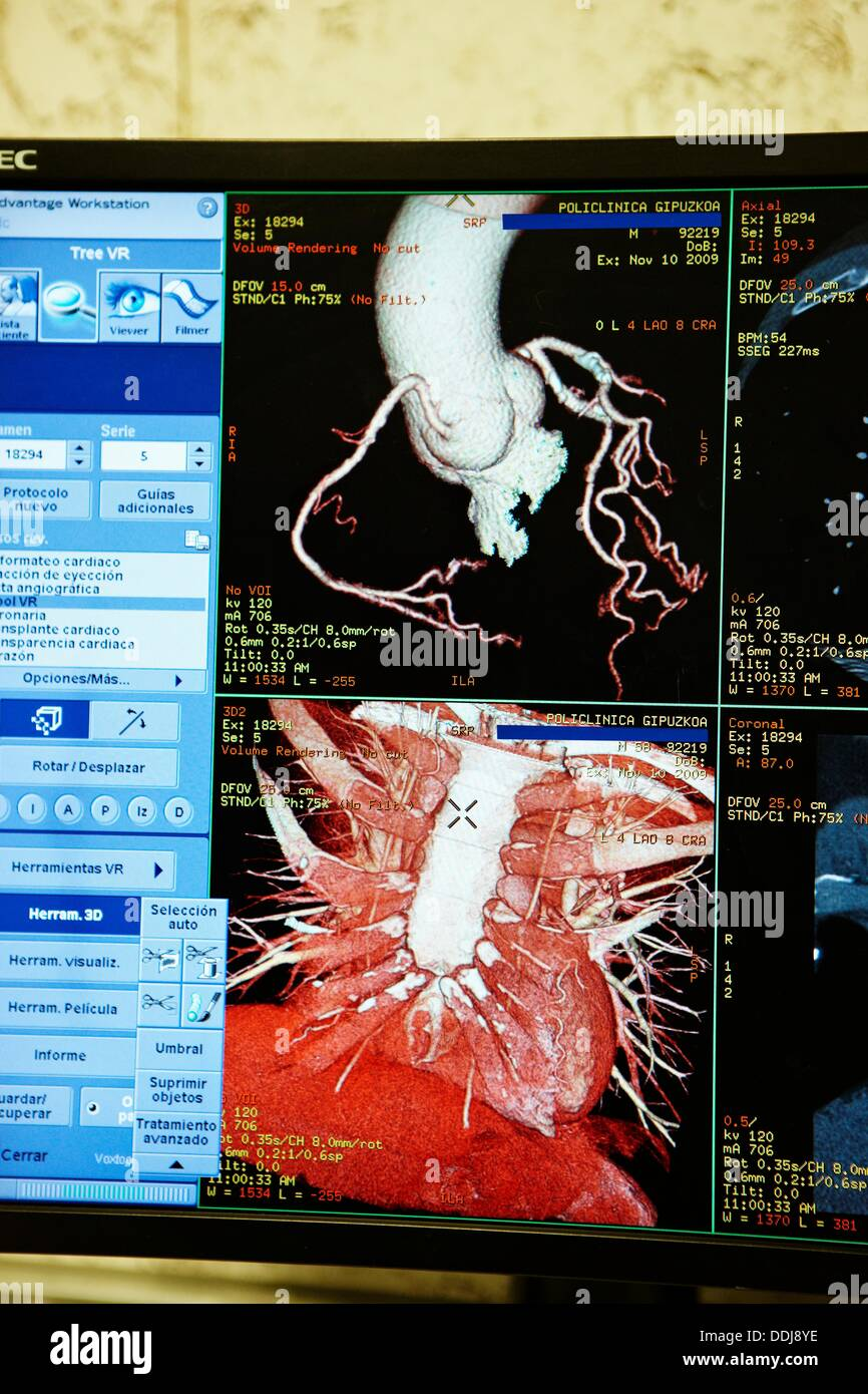 HD(high-definition) scan of heart, CAT, medical imaging for Stock ...