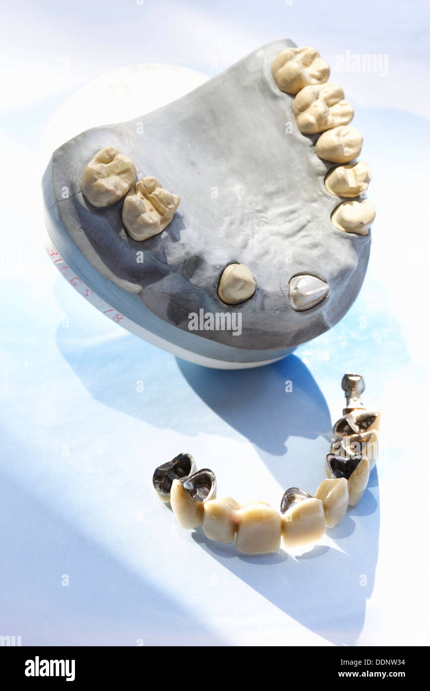 Anterior tooth bridge as ceramic with posterior teeth as inlay-retained bridge and upper jaw model - Stock Image
