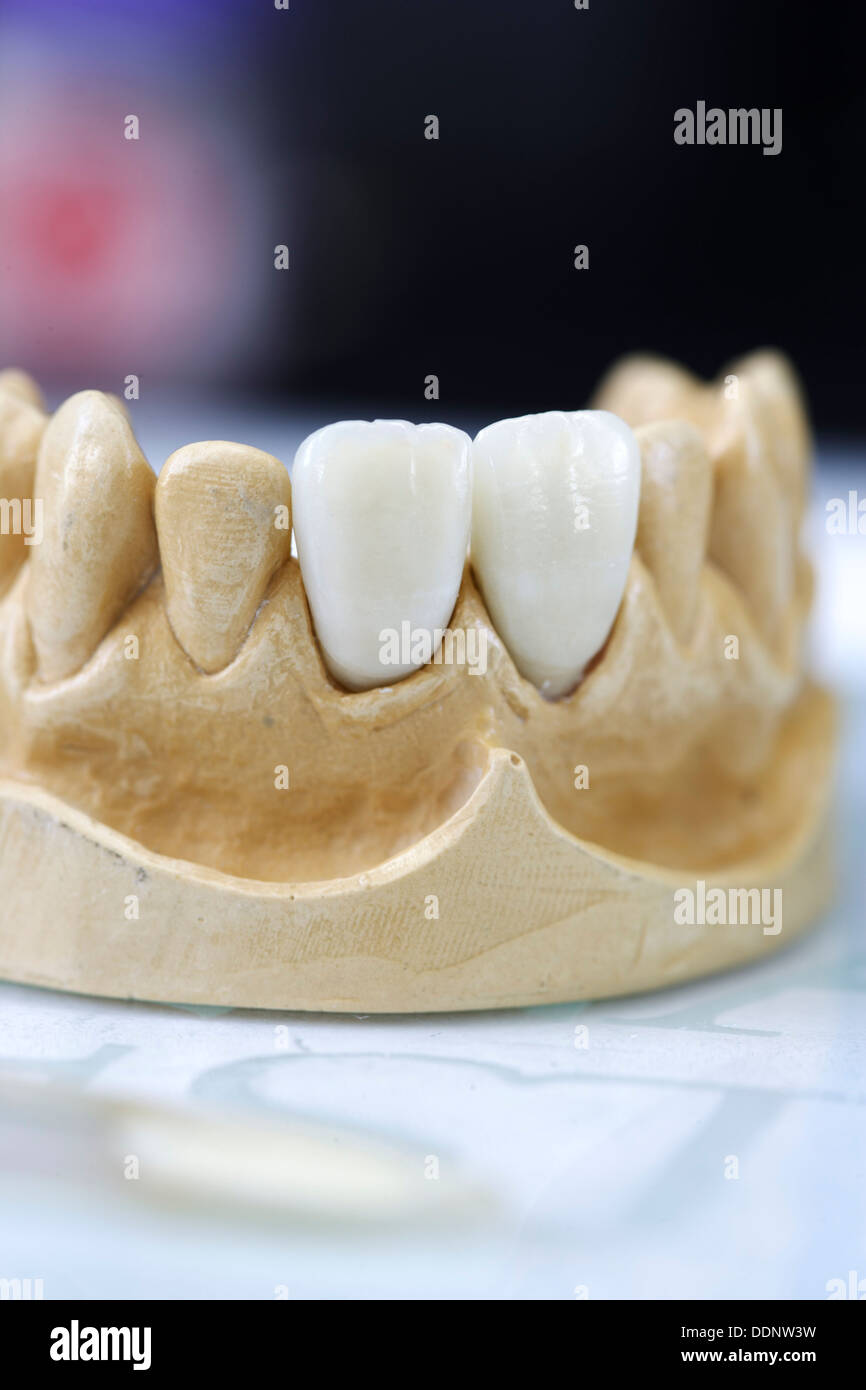Ceramic crowns for central incisors - Stock Image