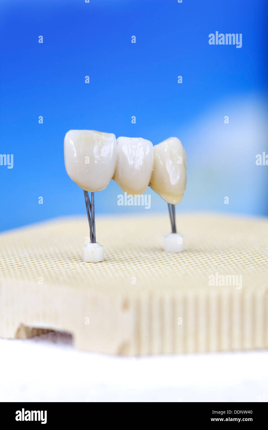 Anterior tooth bridge coming out of furnace for dental - Stock Image