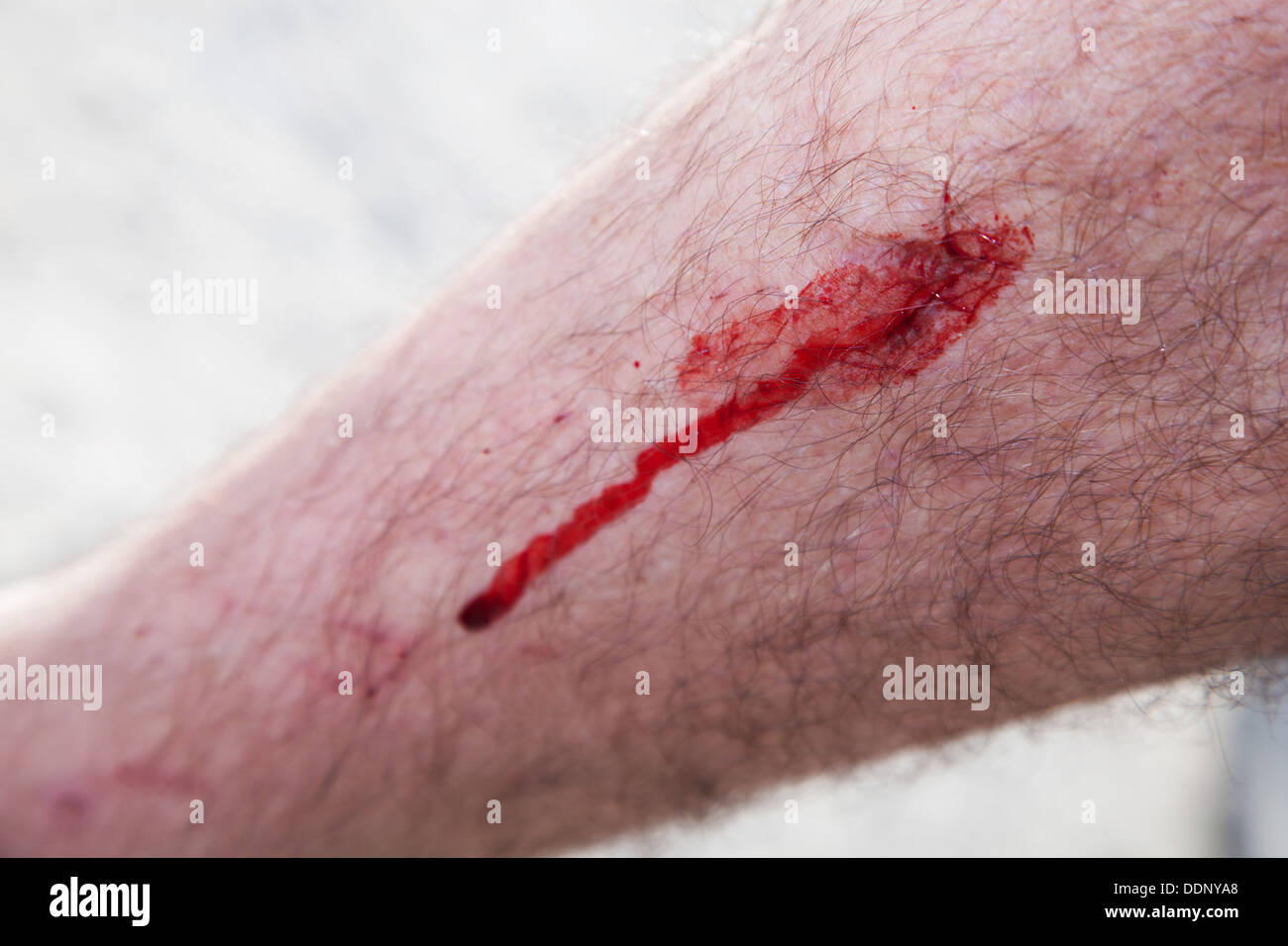 A man's leg with blood coming from a cut / wound - Stock Image
