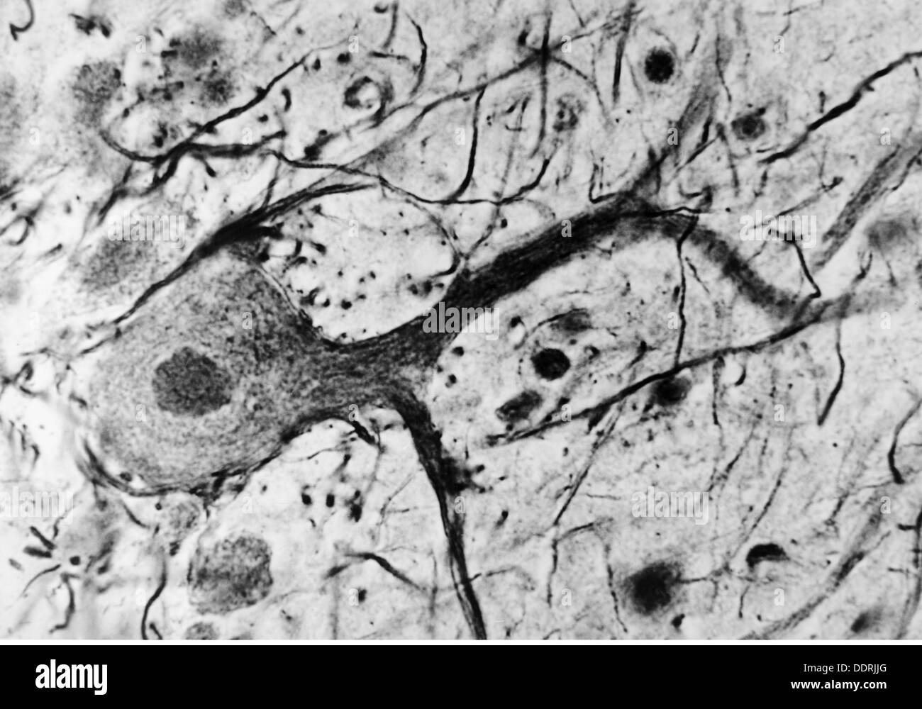 medicine, anatomy, cerebric / cranium, nerve cell of the human cerebellum, 20th century, 20th century, microscopy, nerve cell, nerve cells, neural, neuritic, nerve pathway, nerve tract, nerve pathways, nerve tracts, cerebellum, medicine, medicines, historic, historical, Additional-Rights-Clearences-NA - Stock Image