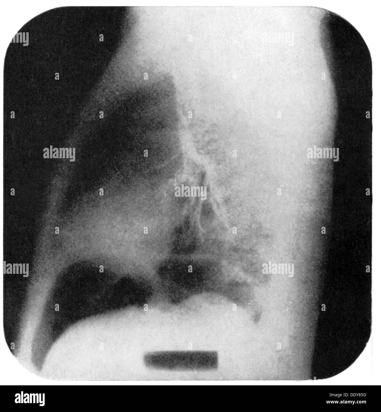medicine, irradiation / X-ray / measurement, abdominal cavity and thorax, x-ray cinematography, 20th century, 20th century, X-ray, X-raying, angiography, pneumography, chest, thorax, rib cage, ribcage, thoraxes, respiratory system, respiratory systems, abdominal cavity, radiograph, X-ray picture, X-ray image, radiographs, x-ray cinematography, medicine, medicines, historic, historical, Additional-Rights-Clearences-NA - Stock Image