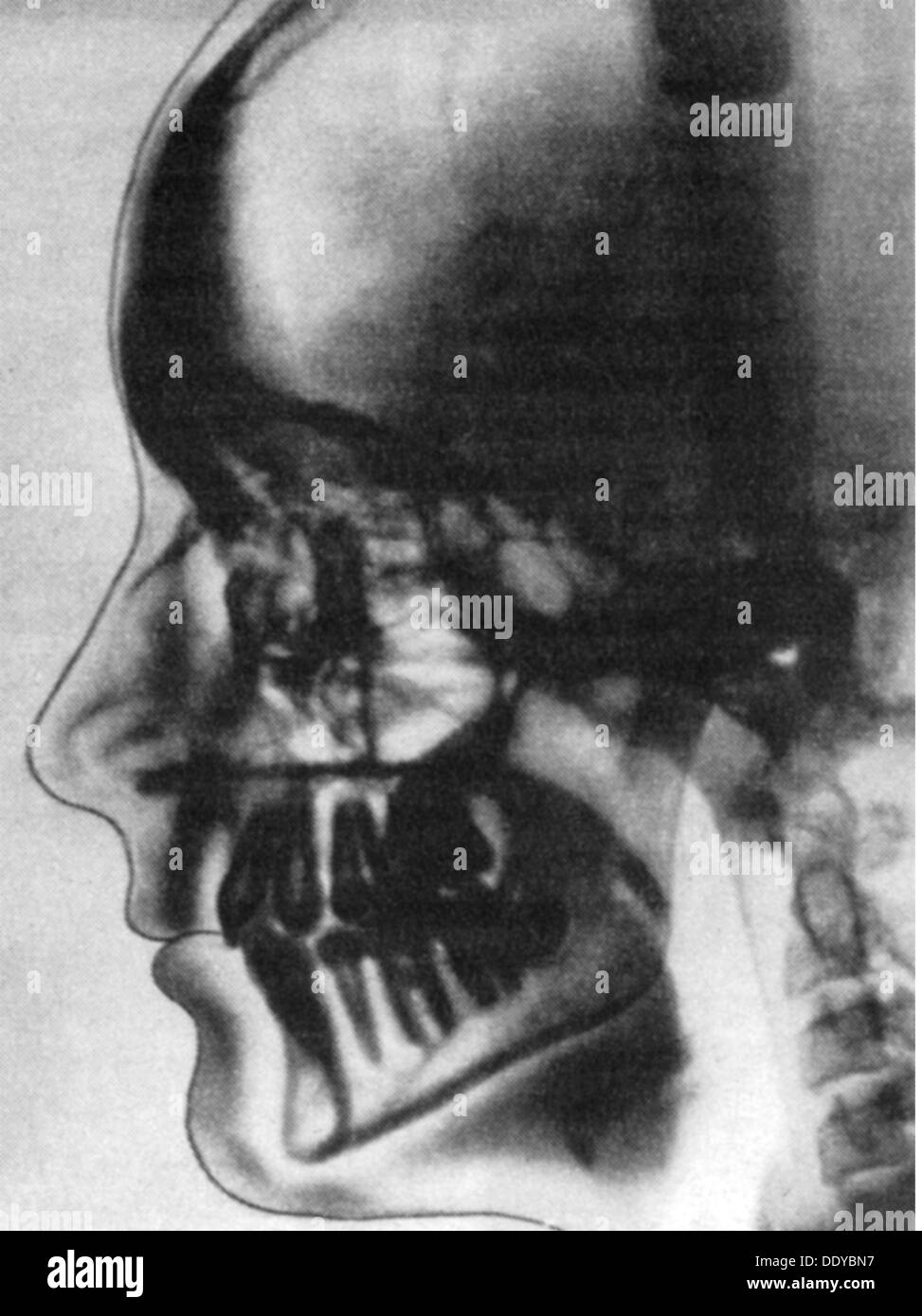 medicine, irradiation / X-ray / measurement, tomography of a human head, 1981, Additional-Rights-Clearences-NA - Stock Image